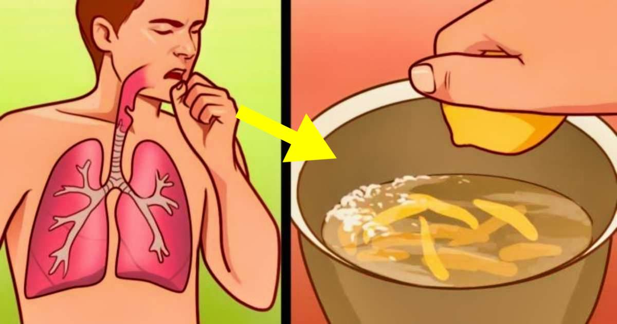 home-remedies-for-bronchitis-and-stop-painful-coughing-attacks