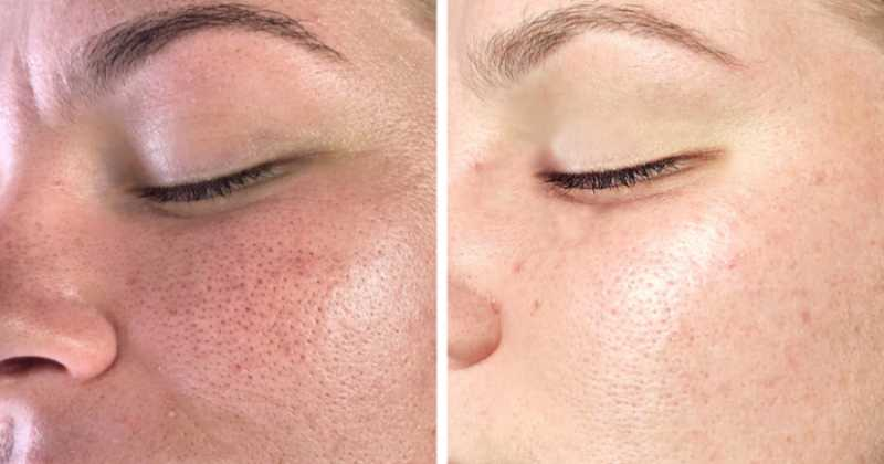 Remove age spots, wrinkles, oily shine and black spots in one week